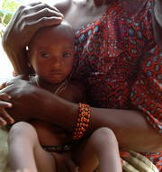 This malnourished child was brought to a feeding center in Maradi in 2005. Photo: Edward Parsons/IRIN
