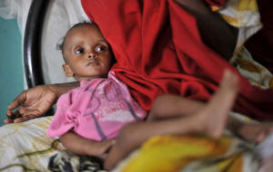 "This young Somali was suffering from severe malnutrition after fleeing home with his parents. ""More than 50 per cent of Somali children arriving in Ethiopia are seriously malnourished, while among those arriving to Kenya that rate is somewhat lower, but equally worrying � between 30 to 40 per cent,"". a  UNHCR spokesperson said.  Photo:Gangale/UNHCR"