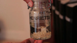 Photo of a guinea worm preserved in a bottle